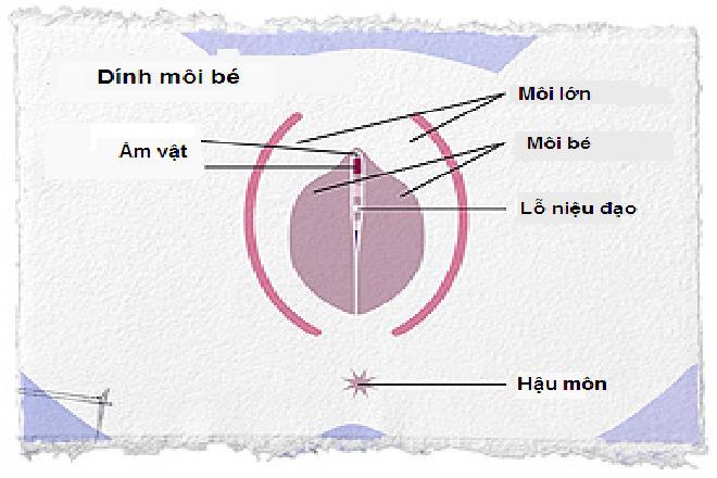 bộ phận sinh dục trẻ sơ sinh gái