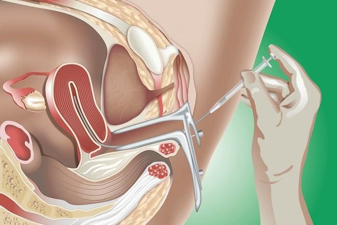 Bơm tinh trùng vào tử cung là biện pháp điều trị hiếm muộn hiệu quả