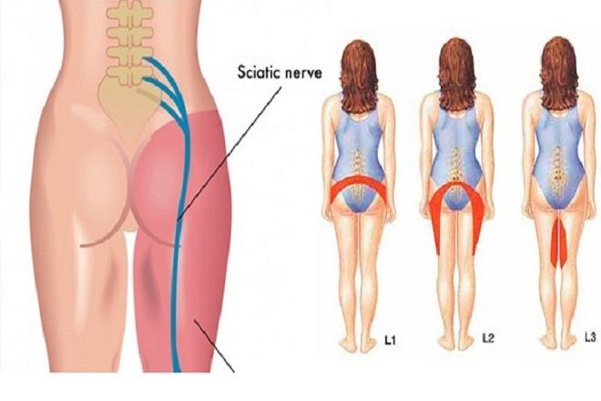 Tình trạng đau lưng của bà bầu còn có thể bắt nguồn từ các cơn đau thần kinh tọa