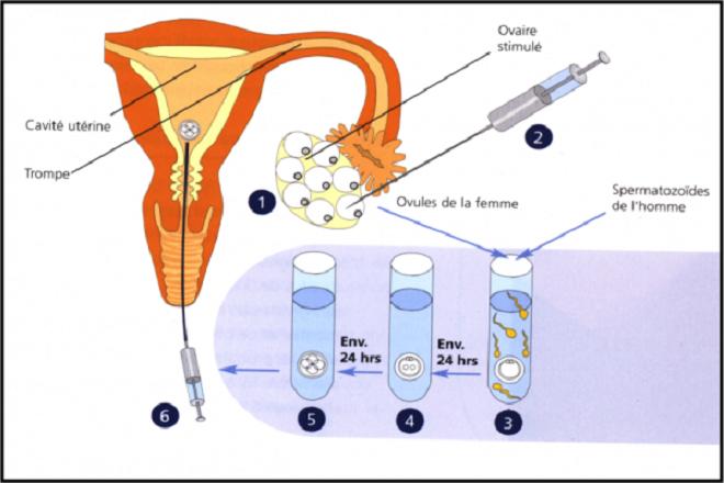 Thụ tinh ống nghiệm (IVF) tại bệnh viện Từ Dũ với chi phí từ 50 - 60 triệu đồng