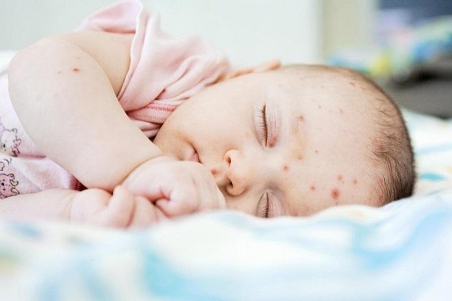 trẻ sơ sinh bị bệnh ngoài da