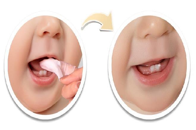 vệ sinh răng miệng cho trẻ sơ sinh mọc răng
