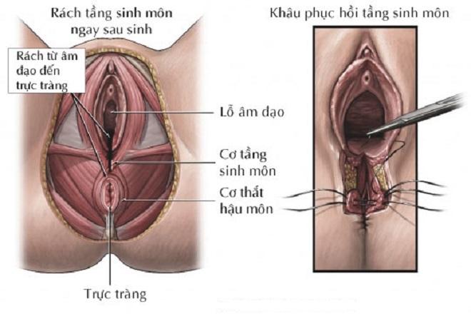 vết khâu âm đạo khiến phụ nữ quan hệ sau sinh bị đau