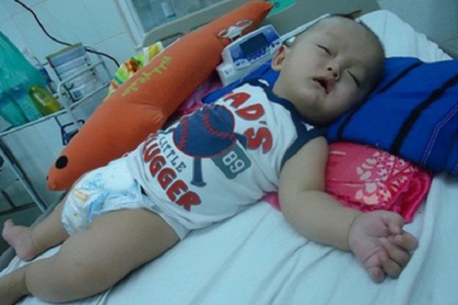 bé 8 tháng bị viêm màng não mủ