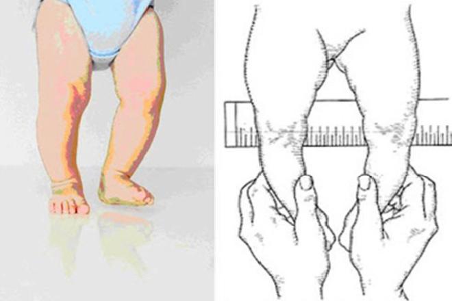 bế vác trẻ sơ sinh sớm khiến trẻ bị vòng kiềng chân