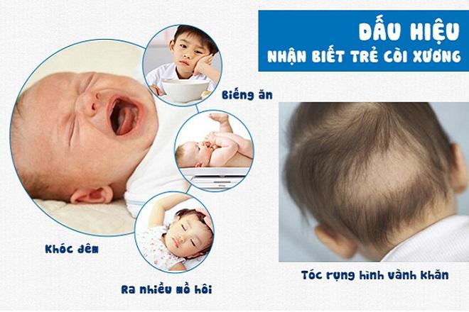 bệnh còi xương ở trẻ sơ sinh