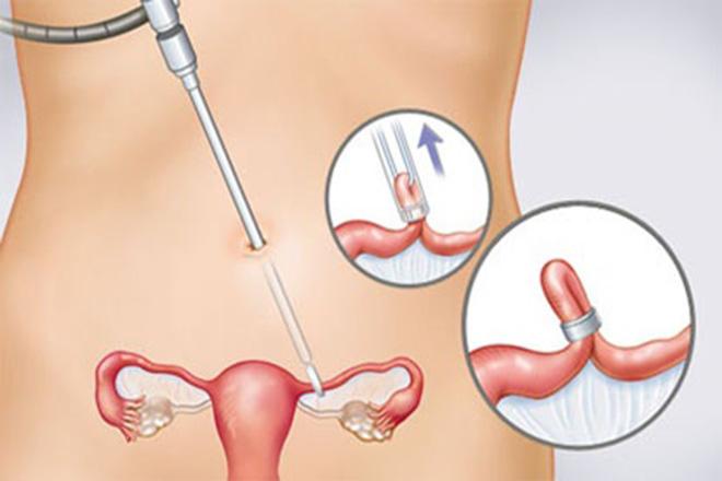 đặt vòng tránh thai sau sinh bao lâu