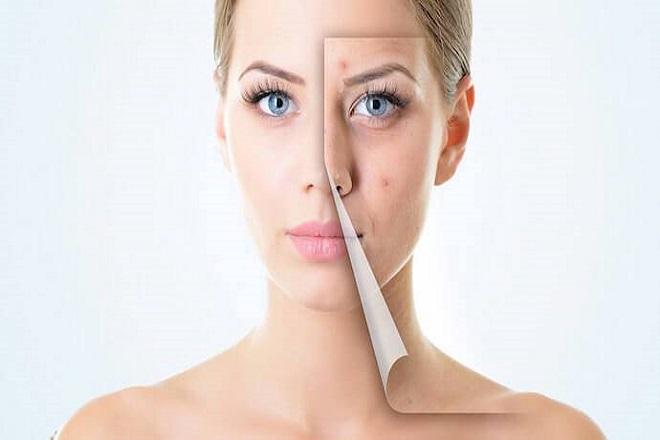 khuôn mặt trước và sau khi trị mụn