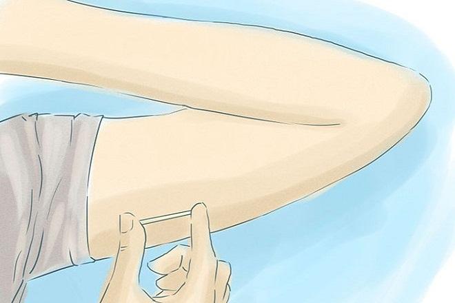 mô phỏng cấy que tránh thai dưới tay