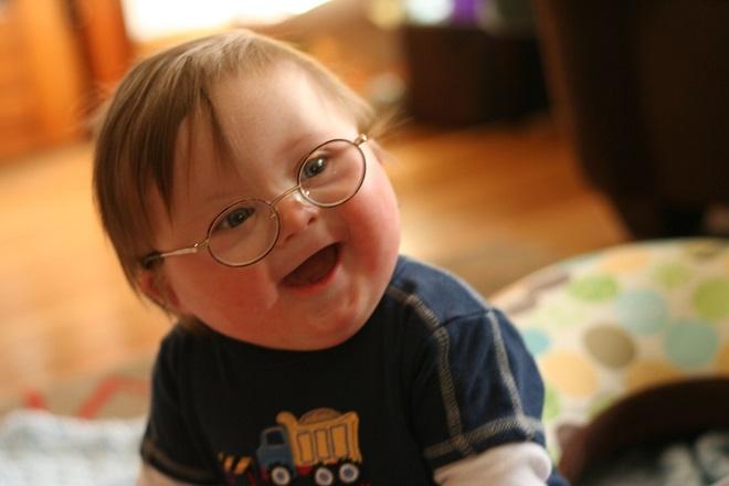 trẻ bệnh down đeo kính