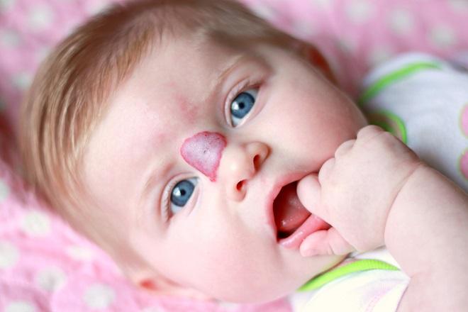 U máu có thể xuất hiện trên da mặt bé