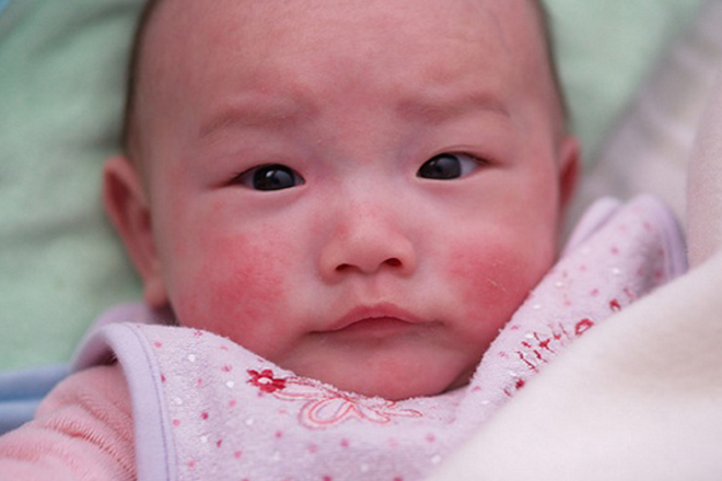 Mụn sữa ở bé sơ sinh dễ phát hiện