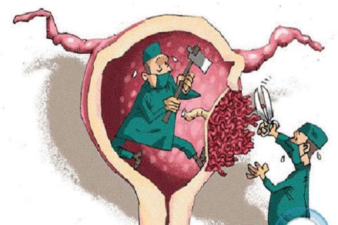 bác sĩ lấy nhau thai ra ngoài