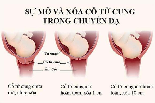 cổ tử cung mở khi chuyển dạ đẻ thường
