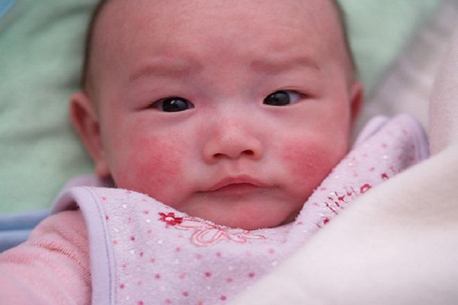 Bong tróc da do trẻ bị chàm dẫn đến da đỏ ửng và ngứa