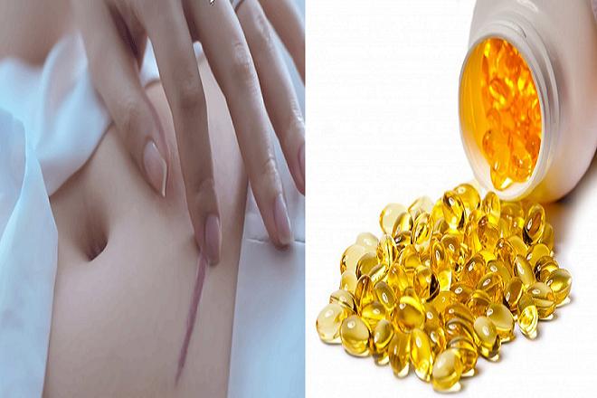 mẹ có thể trị sẹo trên bụng bằng vitamin E