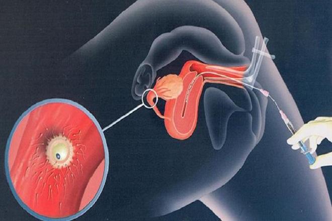 Phương pháp bơm tinh trùng vào buồng tử cung