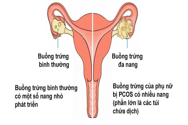 Chị em bị đa nang buồng trứng sẽ có thể lên chức làm mẹ