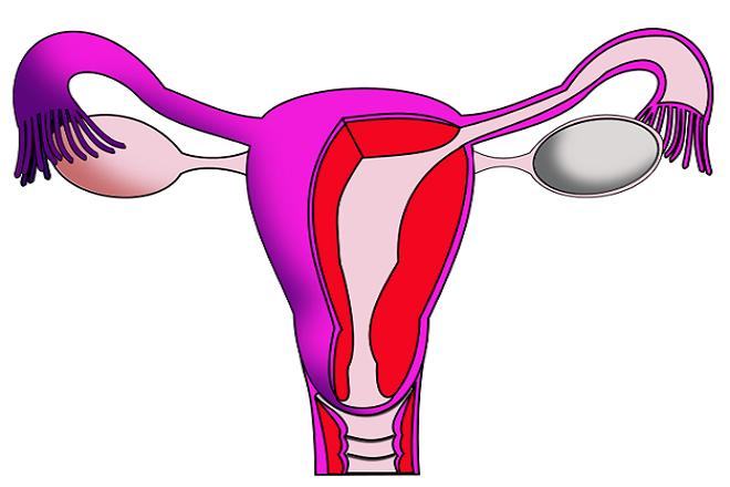 dính buồng tử cung phải làm sao khi nó gây vô sinh ở nữ