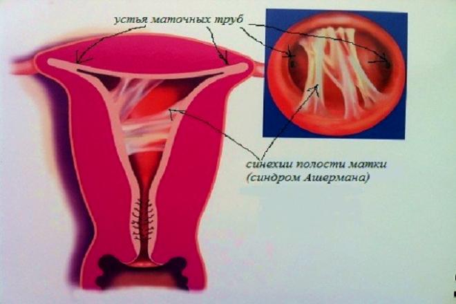 vô sinh hiếm muộn ở nữ giới
