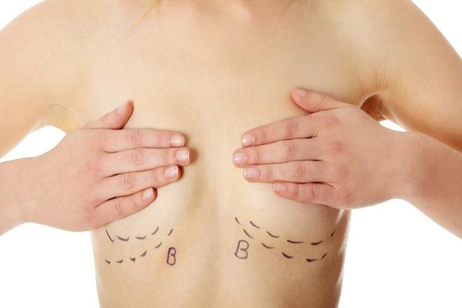 đường mổ ngay lằn dưới ngực giúp che sẹo tốt sau phẫu thuật