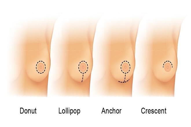 đường mổ ở quầng ngực phù hợp với mọi loại túi độn dùng để nâng ngực