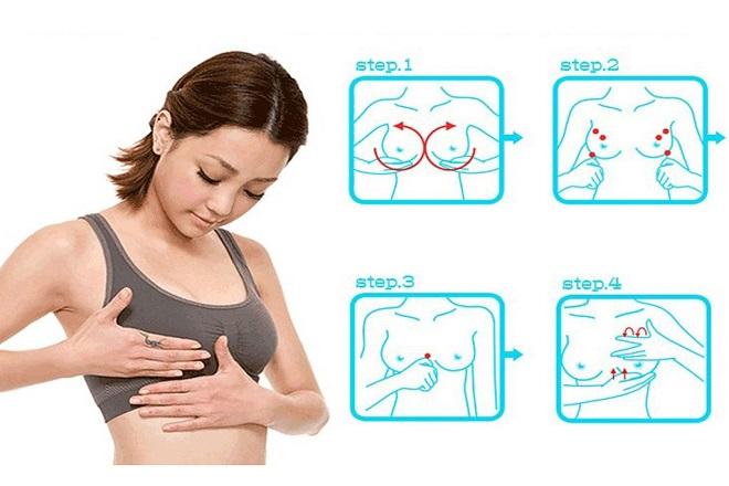 cách nâng ngực chảy xệ sau sinh