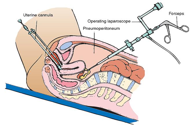 mổ nội soi gỡ dính tử cung