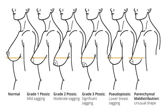 phương pháp treo ngực xệ sau sinh