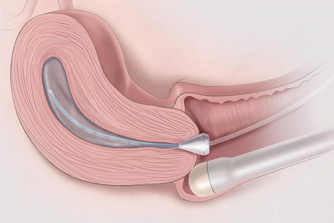 siêu âm đầu dò giúp chẩn đoán vấn đề của cơ quan sinh sản ở nữ