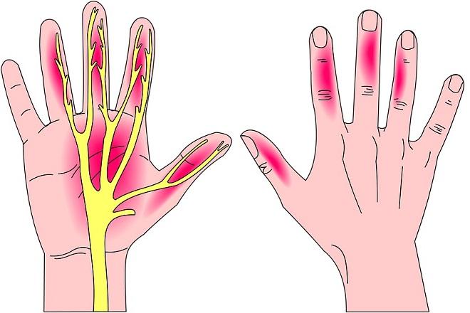 tê ngón tay sau sinh khu vực từ ngón cái đến ngón giữa