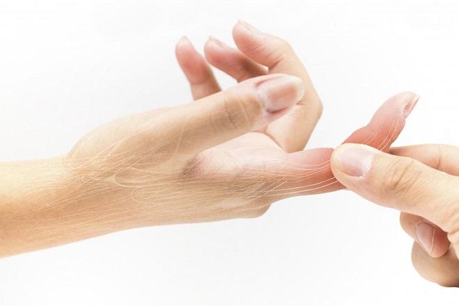 tê toàn bộ đầu ngón tay phải do tế bào thần kinh đang chịu áp lực