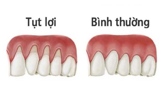 tụt nướu răng khiến mẹ bị tê buốt răng khi ăn uống