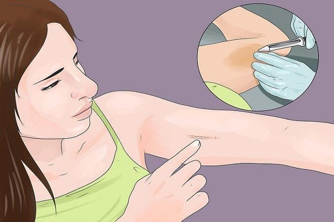 cấy que tránh thai bị mất kinh cũng đem lại những thuận lợi riêng