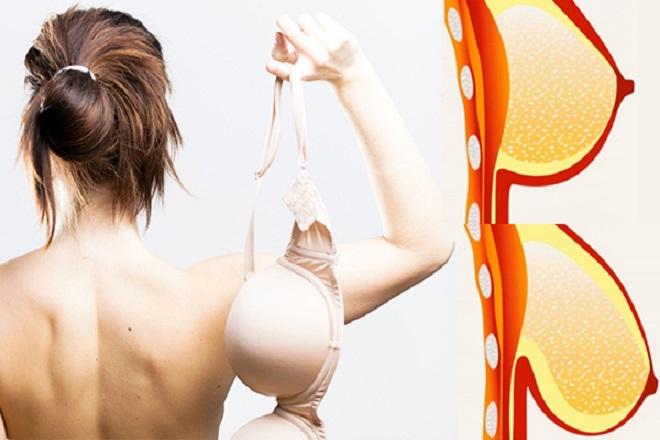 ngực to và chảy xệ sau sinh