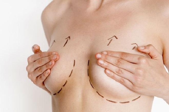 ngực bị chảy xệ sau sinh