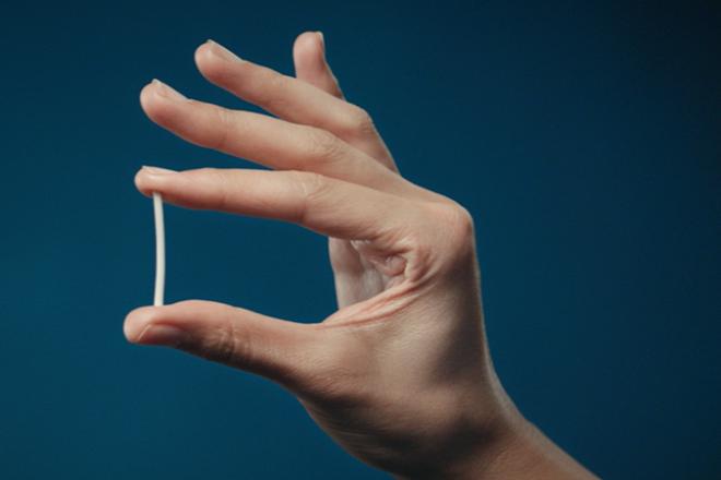 que cấy tránh thai implanon phổ biến ở việt nam