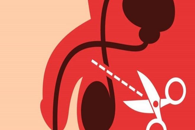 triệt sản nam chỉ can thiệp ở ống dẫn tinh chứ không tác động đến tinh hoàn