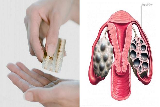 uống thuốc tránh thai hàng ngày có thể điều trị đa nang buồng trứng