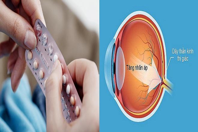 uống thuốc tránh thai trong thời gian dài có thể làm tăng nhãn áp