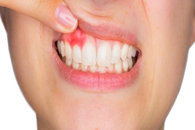 nướu răng viêm sưng là triệu chứng điển hình của bệnh viêm nha chu