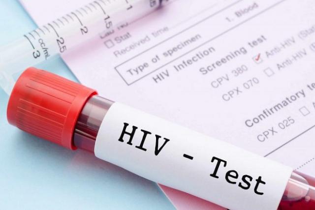 ống máu xét nghiệm hiv