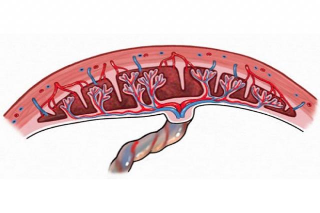 rau cài răng lược gây chảy máu sau khi đẻ