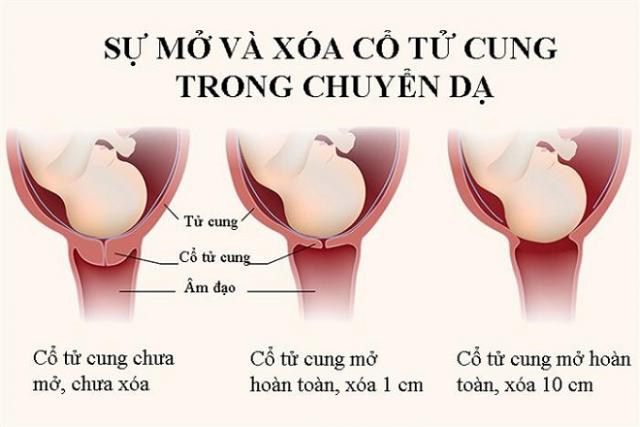 xóa mở cổ tử cung