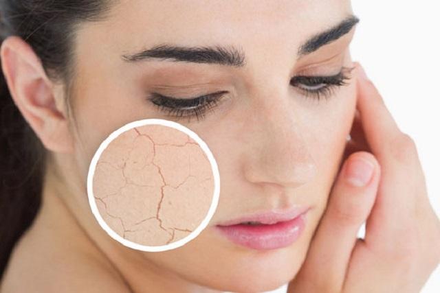 sau sinh da mặt bị khô