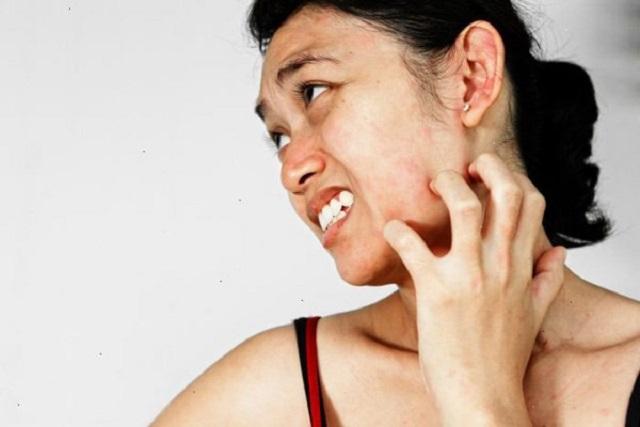 sau sinh da mặt bị ngứa