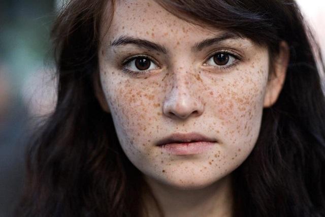 da mặt bị thâm nám
