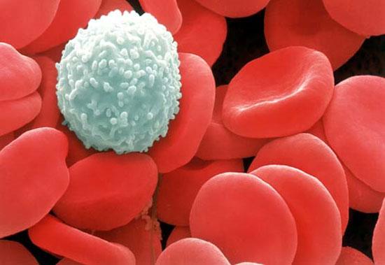 Triệu chứng nhiễm trùng máu ở người lớn & cách điều trị