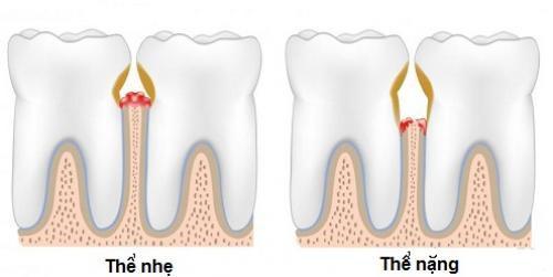 Tự nhiên bị chảy máu chân răng là bệnh gì?