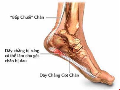 Đau gót chân là triệu chứng của bệnh gì?